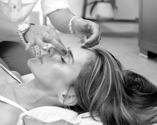 Ansiktsakupunktur enligt kinesisk medicin